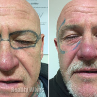 7cdc7da82fa01 Drunk Man Has Ray Ban Sunglasses Tattooed On Face During Stag Night |  Reality Wives UK