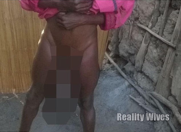 Sorence Owiti Opito-tumor-penis-blur