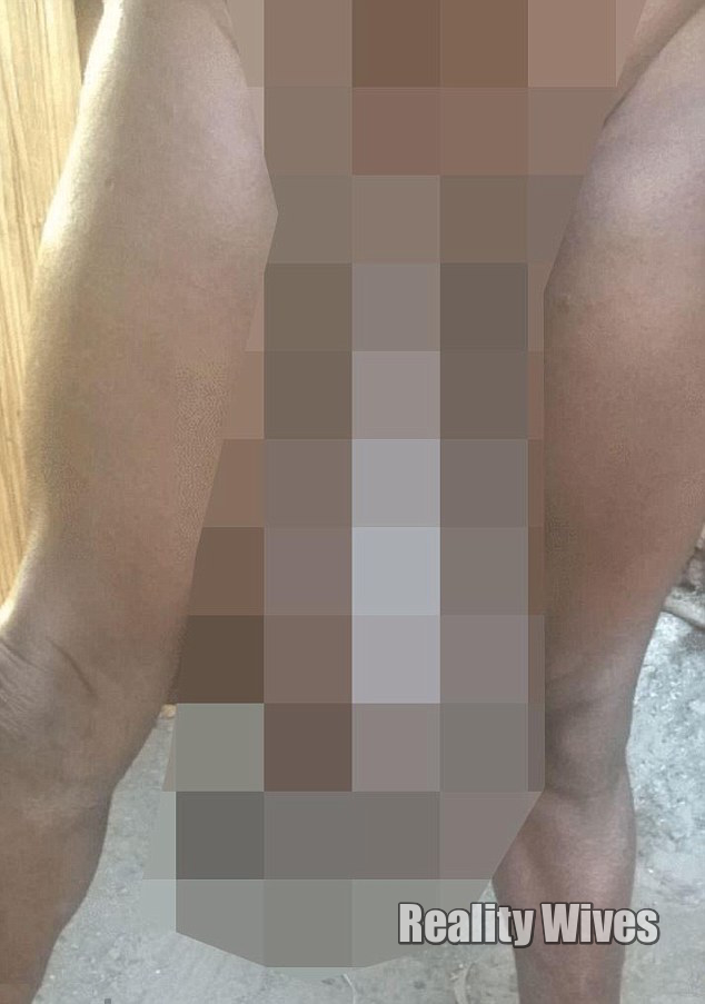 Sorence Owiti Opito-tumor-penis_blur